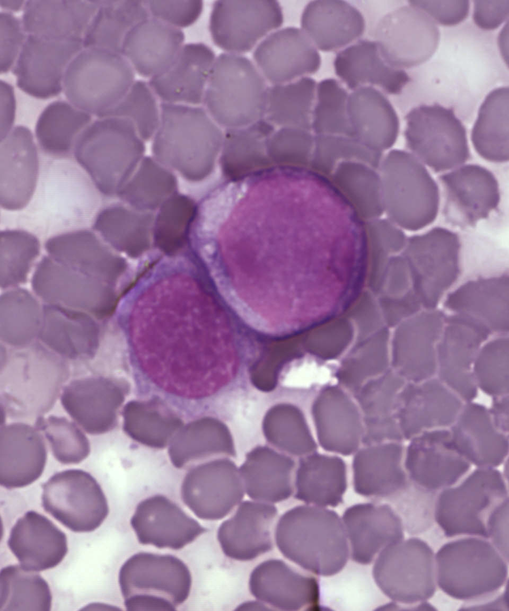 Leukemia cells Source: PLOSone
